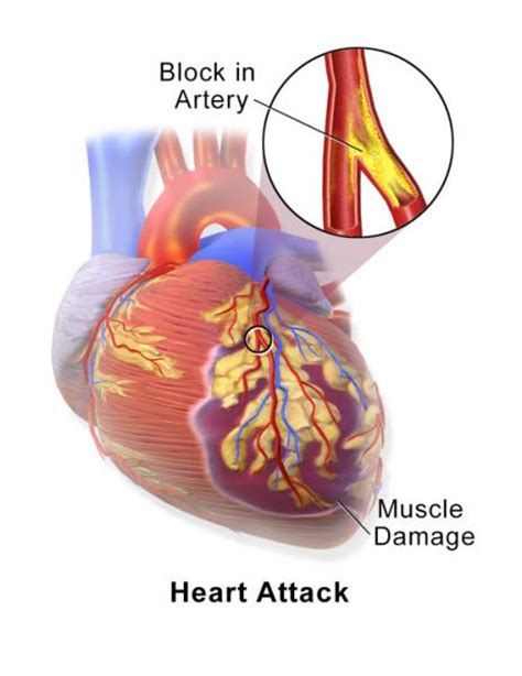 blocked arteries and open surgery clearing a totally blocked artery without surgery