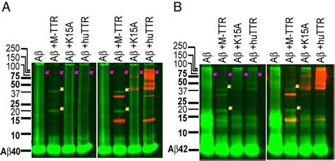 New Oversize Top Green Lonely Figure Desain Sederhana Cantik 31361 Ai mechanisms of transthyretin inhibition of 邁 amyloid aggregation in vitro journal of neuroscience