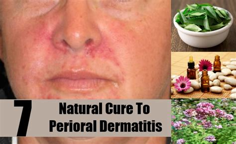cures for perioral dermatitis how to cure