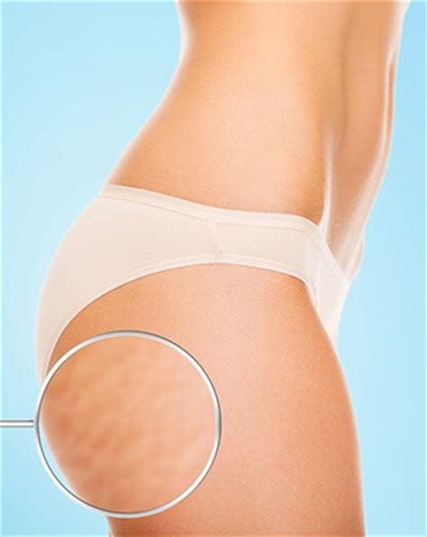 how to get rid of stretch marks (butt, thigh & hips) femniqe