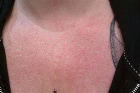 sle chest x report mild lupus rash on the flparentingnews archive