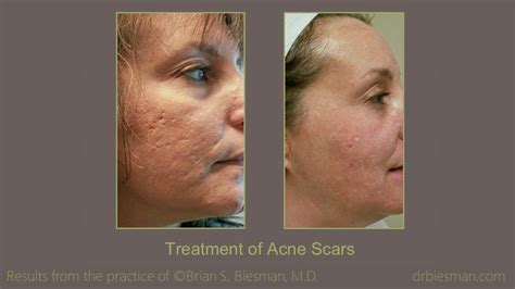 acne scar treatment    gallery nashville tn