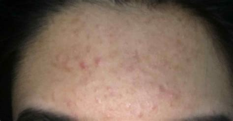skin colored bumps skin bump on tommycat info