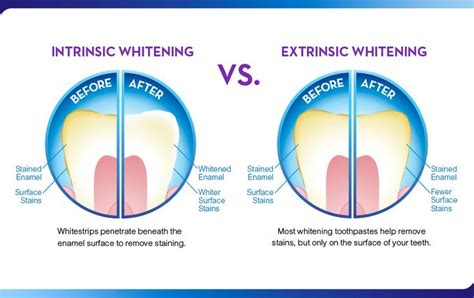 7 Reasons To Get Your Teeth Whitening Procedure Done By A Pro by Whitening Toothpaste Before And After Search