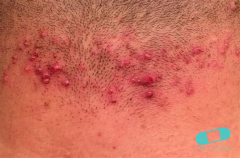 The Cause That Responsible For Barbers Folliculitis May Be Either A | online dermatology folliculitis barber s itch