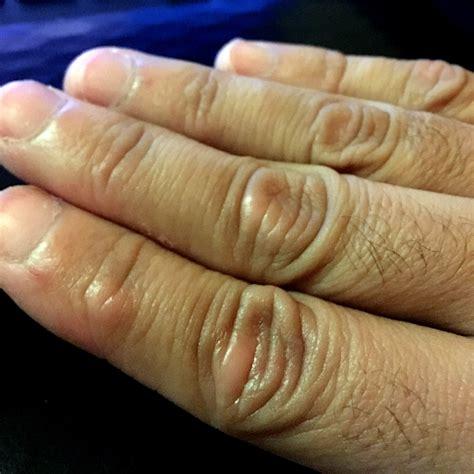 las oscuras manos del 8467915366 manchas que pican en los nudillos