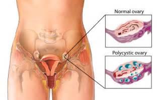 Pcos polycystic ovary syndrome mek zumbie