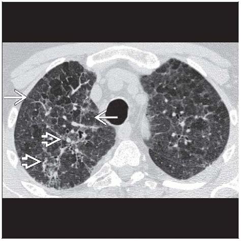 mosaic pattern radiology hypersensitivity pneumonitis chronic radiology key