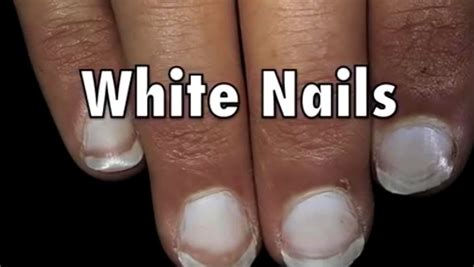 white nail beds 9 fingernail signs that may indicate health issues