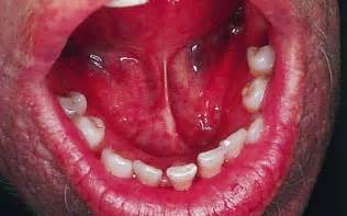 Floor Of Mouth Cancer by Homesteadschools Com Oral Cancer Screening Protocols