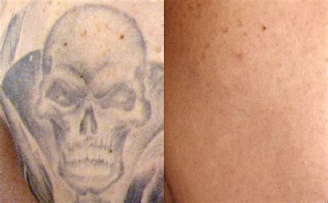 red tattoo removal removal worth it wheaton laser removal