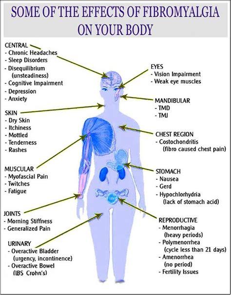 trigger points fibromyalgia diagram fibromyalgia diagram pictures to pin on