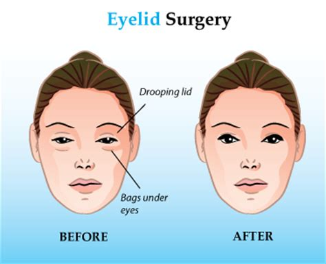 blepharoplasty cost reading a word