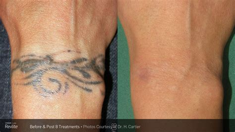 how does skin look after tattoo removal removal luxe laser center