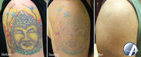 full tattoo removal complete color spectrum removal the cosmetic