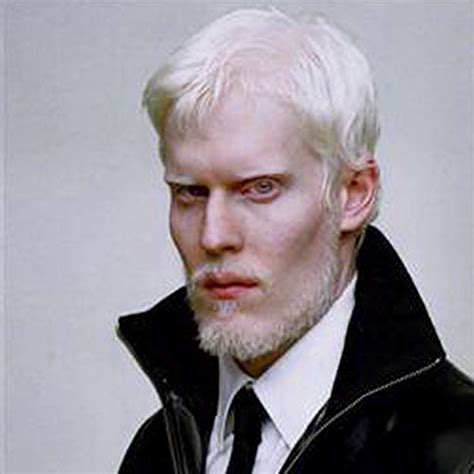 top 5 a listed albino supermodels. – the a list by marcel
