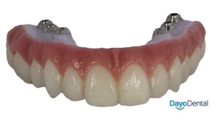 denture implants vs fixed bridge teeth replacement