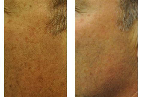 brown spots age spots and tattoo removal san diego