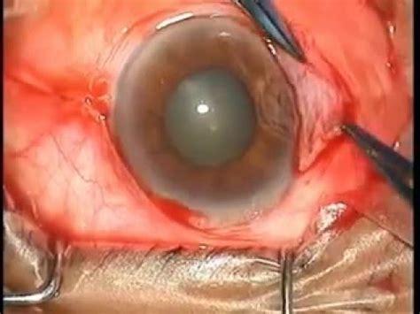 cara membuat slime dari eye drops dr glue videolike