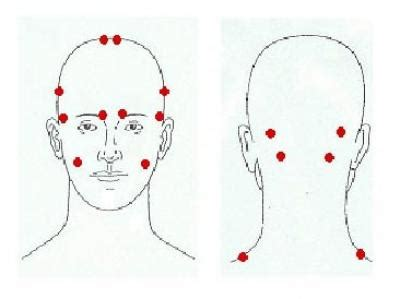 Laser Therapy Trigger Points Detox by Botox Injected In Trigger Point Is Proven To Reduce