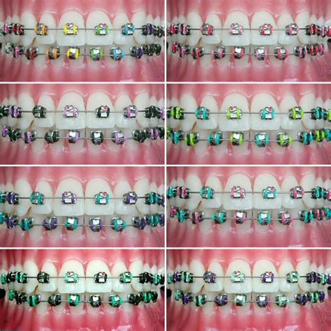 braces color chart best 25 braces colors ideas on complimentary