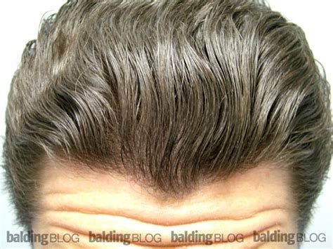 dutasteride for hair loss trying to keep looking full wrassman m d baldingblog