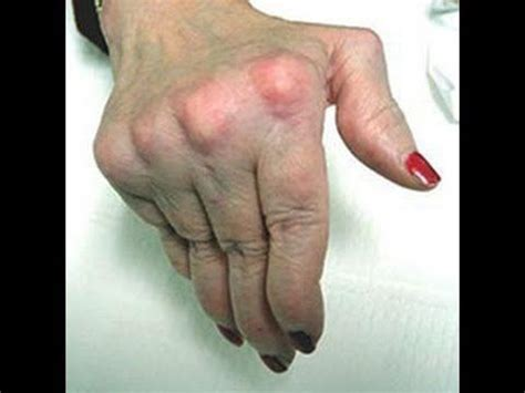 alimentazione artrite reumatoide 22 best sintomi artrite reumatoide alimentazione artrite