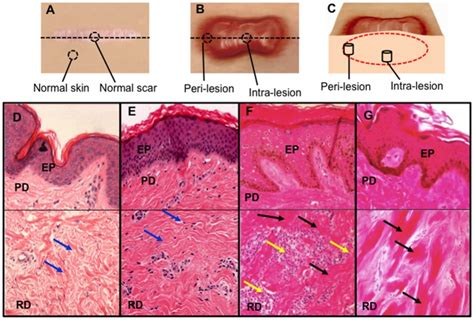 c section scar tissue lump dermal biopsy locations from healthy controls and keloid