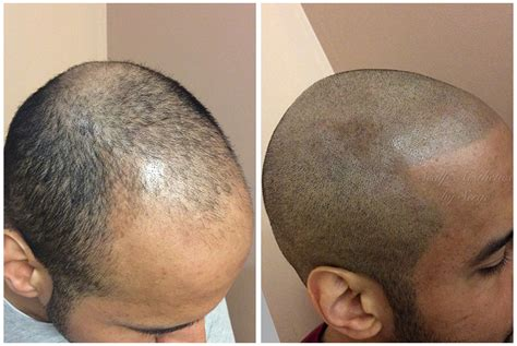 scalp micropigmentation in pakistan hair pigmentation the best hair of 2018