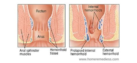 why anal pain hemorrhoid disease causes and types traditional medicine
