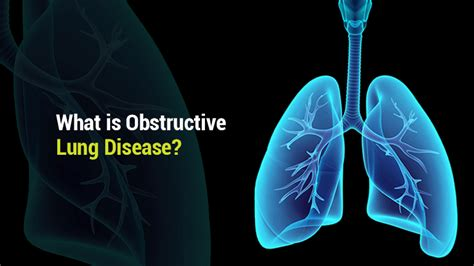 blogger lung what is obstructive lung disease lung institute