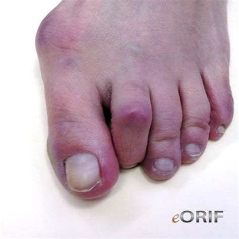 corn and bunions removal plantar wart on heel