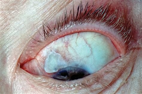eye problems pictures differential diagnoses eye problems gponline