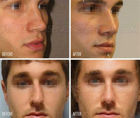 nose shaper before and after nose straightener and deviated septum surgery