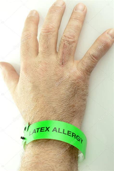 imagenes de alergia al latex pulsera de la mu 241 eca de alergia al l 225 tex en mano foto de