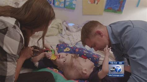 how do conjoined twins go to the bathroom formerly conjoined twins jadon anias say dada in latest