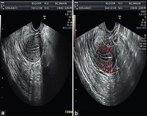 triple line pattern endometrium a triple line endometrial pattern with endometrial