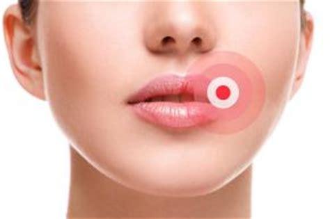 gonfiore labbra interne bolle sulle labbra le cause le tipologie i rimedi