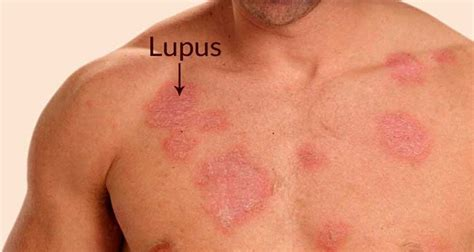 Detox Rash Left Breast by Combat Lupus Skin Rash On Naturally With These Potent