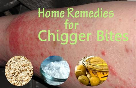 10 steps to get rid of chigger bites howtoxp com 21 best home remedies to get rid of chigger bites soon