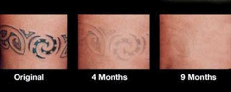 buy tattoo removal cream before and after photos of removal