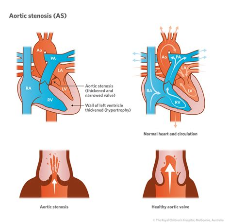 aortic stenosis diagram cardiology aortic stenosis as