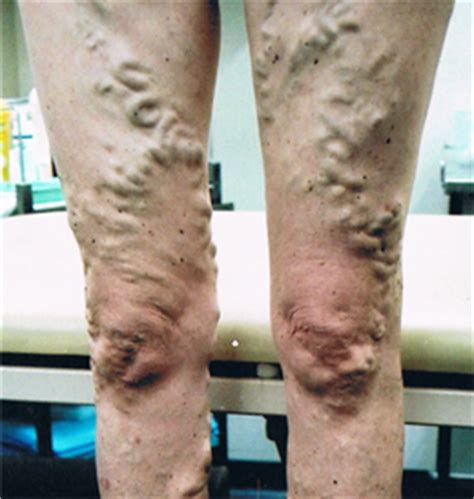 tattoo over varicose veins why you should get your varicose or spider veins treated