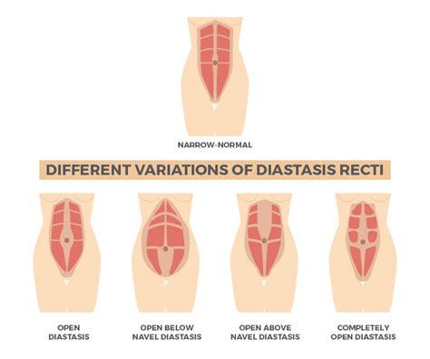 abdominal separation diastasis recti repair activating