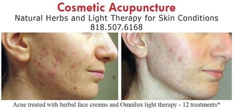 Detox Breakouts From Accupuncture by Our Clinic Offers Cosmetic Acupuncture And Acne