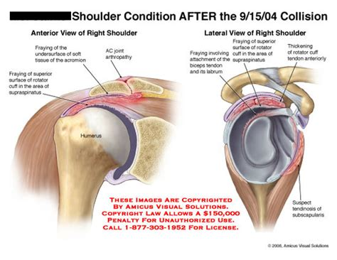left shoulder pain after bench press left shoulder pain after bench press shoulder pain