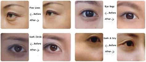 Masker Mata Asli Gold Eye Collagen Mask Masker Mata Gold rilakkuma