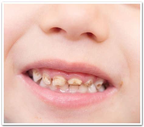 chambre syndicale dentaire cancer de la bouche et caries en belgique dentist