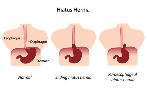 hernia after c section cool your digestion self massage technique john