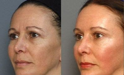 Tca 20 30ml By Azfida Skin Care 193 cido mand 233 lico 30 gel 30ml peeling skin care